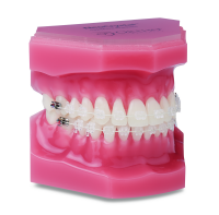 Aesthetic Brackets